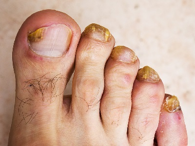 Fungal-Infection-on-Toenails