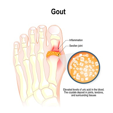 Gout-Inflammation