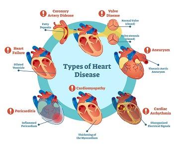 Types-of-Heart-Disease-Chart