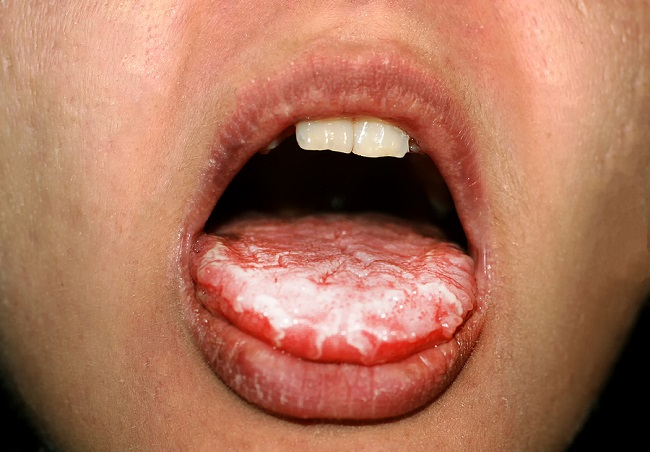 oral-yeast-infection-on-tongue