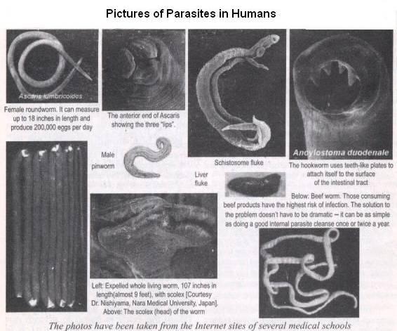 10 Human Parasites >> 10 Human Parasites