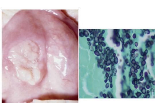 Saccharomyces-cerevisiae-laryngitis