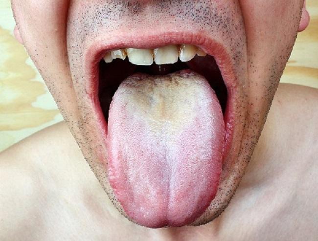 White-Film-on-Tongue
