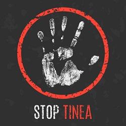 stop tinea
