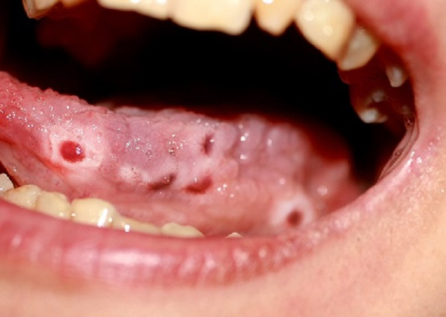 Candidiasis-of-the-Tongue