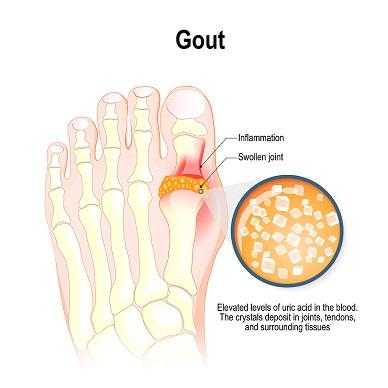 Gout-Inflammation