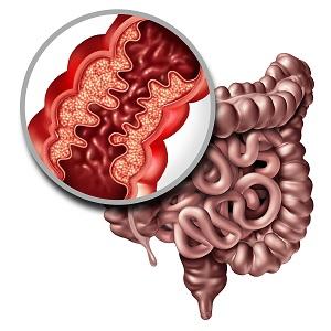 Crohns-Disease