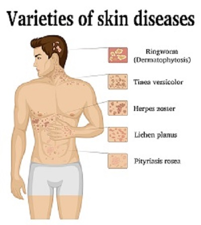 skin-yeast-chart
