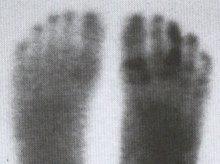 yeast fungi in feet